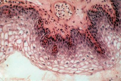 Stratified Squamous Epithelium, Lm Art Print