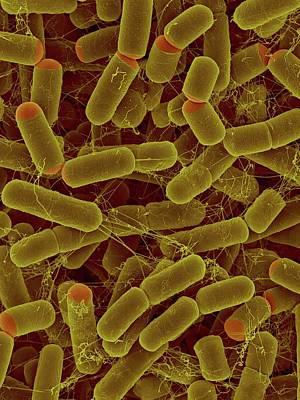 Sulfitobacter Pontiacus Art Print by Dennis Kunkel Microscopy/science Photo Library