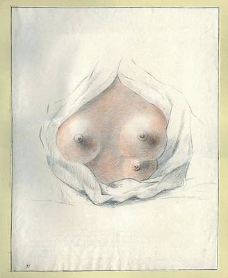 Supernumerary Nipple Art Print by National Library Of Medicine