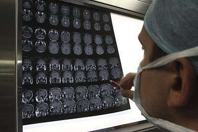 Surgeon Looking At Brain Scans Art Print by Science Photo Library