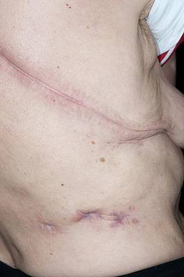 Torso Wall Art - Photograph - Surgical Scars On The Torso by Dr P. Marazzi/science Photo Library
