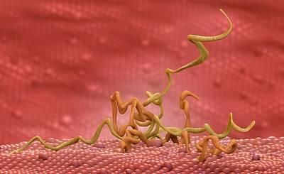 Syphilis Infection Art Print