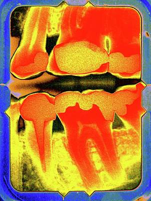 Filling Photograph - Teeth And Fillings by Larry Berman
