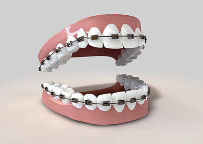 Bite Digital Art - Teeth Fitted With Braces by Allan Swart