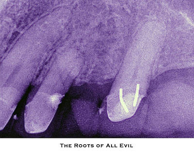Photograph - The Roots Of All Evil by Lorenzo Laiken