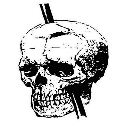 Painting - The Skull Of Phineas Gage Vintage Illustration Vector by Tracey Harrington-Simpson