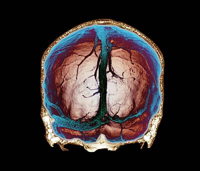 Thrombophlebitis Of The Brain Art Print