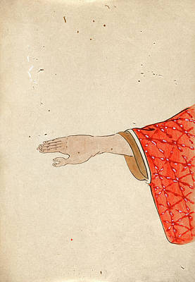 Thumb Polydactyly Print by National Library Of Medicine
