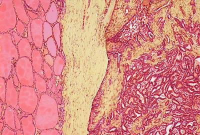 Thyroid Cancer Art Print by Steve Gschmeissner