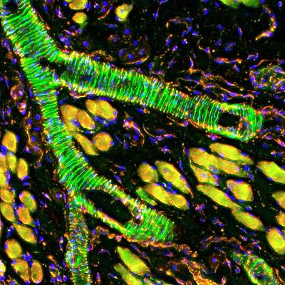 Nucleus Photograph - Tongue Blood Vessel by R. Bick, B. Poindexter, Ut Medical School