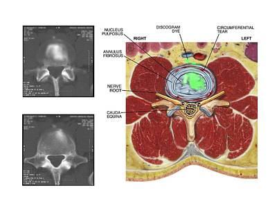 Torn Disc In The Lumbar Spine Art Print