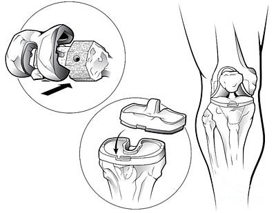 Total Knee Replacement Prosthetic Art Print by Evan Oto