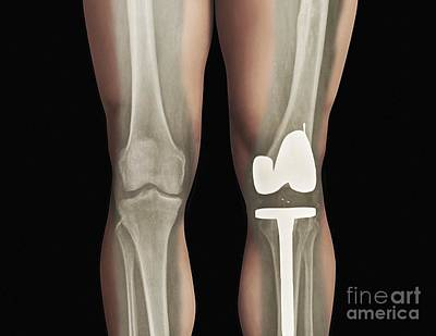 Total Knee Replacement Photograph - Total Knee Replacement, X-ray by Zephyr
