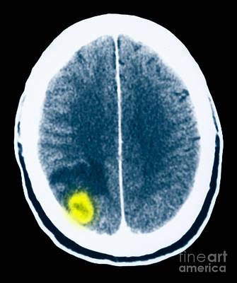 Toxoplasmosis Of The Brain Art Print by Scott Camazine
