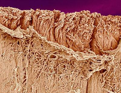 Trachea Muscle, Sem Art Print by Science Photo Library