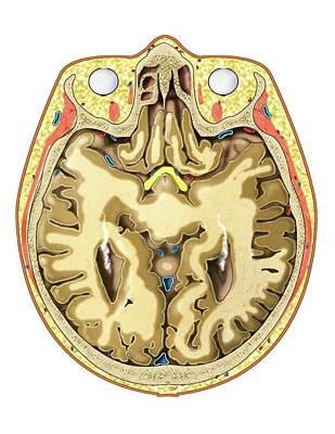 Transverse Section At Eyes Level Art Print by Asklepios Medical Atlas