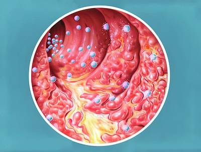 Inflamed Wall Photograph - Ulcerative Colitis Treatment by John Bavosi