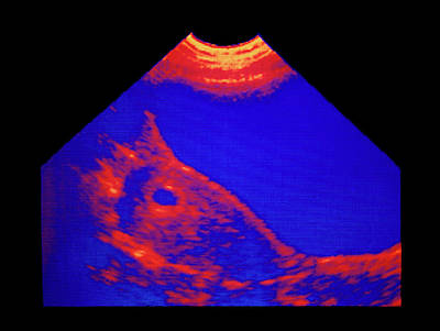 Pregnancy Wall Art - Photograph - Ultrasound Scan: 4-6 Week Pregnancy by Science Photo Library