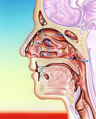 Upper Respiratory Tract Infection Art Print
