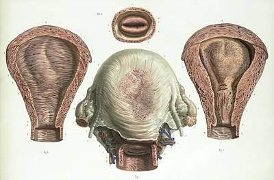 Uterus After Childbirth Print by Science Photo Library