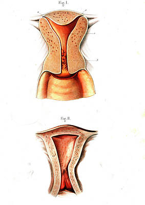 Uterus Anatomy Print by Collection Abecasis