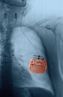 Vagus Nerve Stimulator, Epilepsy, X-ray Print by Scott Camazine