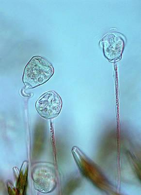 Vorticella Protozoa Art Print