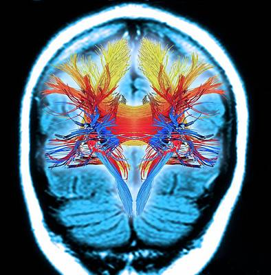 Human Brain Photograph - White Matter Fibres by Alfred Pasieka