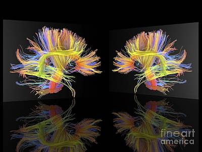 Mirror Imaging Photograph - White Matter Fibres Of The Human Brain by Alfred Pasieka