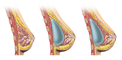 Incision Digital Art - Woman Breast Implant Cross Section by Leonello Calvetti