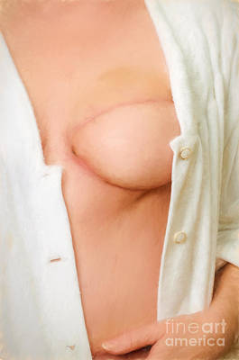 Photograph - Woman With A Reconstructed Breast  by Les Palenik
