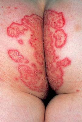 Pregnancy Wall Art - Photograph - Woman's Buttocks Showing Tinea (fungus) Infection by Dr P. Marazzi/science Photo Library