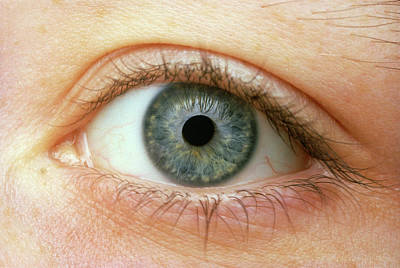 Woman's Right Eye Art Print by Martin Dohrn/science Photo Library