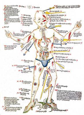 Wound Man, 1420s Art Print