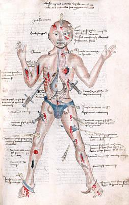 Wound Man, 1485 Art Print