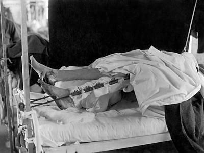 1910s Photograph - Wounded Soldier With Trench Foot by Otis Historical Archives, National Museum Of Health And Medicine