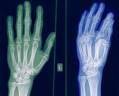 Radiographs Photograph - X-ray Of A Healthy Hand by Photostock-israel