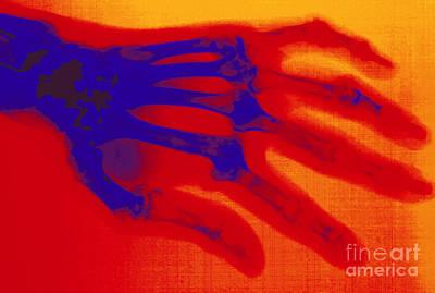 Photograph - X-ray Of Hand With Rheumatoid Arthritis by Scott Camazine