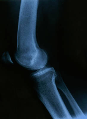 Photograph - X Ray Of The Knee  by Marek Poplawski