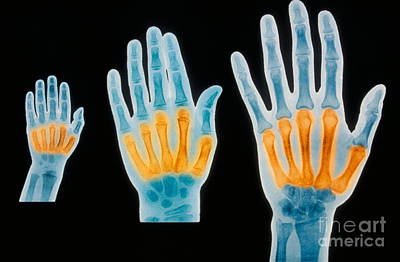 Of Hands Photograph - X-rays Of 2 Year Old, 7 Year Old by Scott Camazine & Sue Trainor