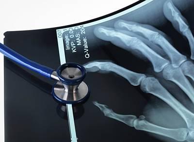 X-rays Of Hands Art Print