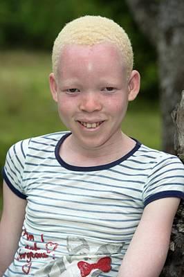 Black Children Photograph - Young Albino Kosi Girl by Tony Camacho