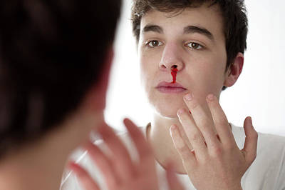 Bleed Photograph - Young Man With Nose Bleed by Mauro Fermariello