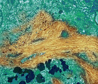Senile Plaques Photograph - Alzheimer's Disease Brain Cell, Tem by Thomas Deerinck, Ncmir