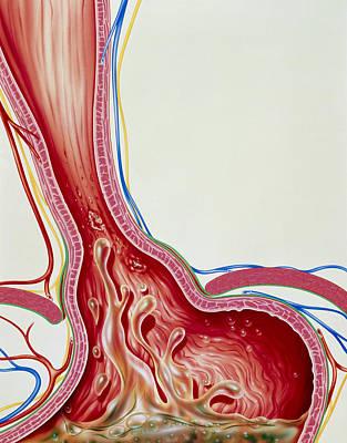 Art Of Gastro-oesophageal Reflux In Hiatus Hernia Art Print