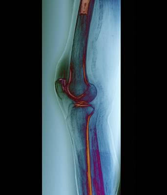 Arteritis Of The Knee, X-ray Art Print