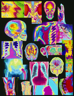 Assortment Of Coloured X-rays And Body Scans Print by Mehau Kulyk