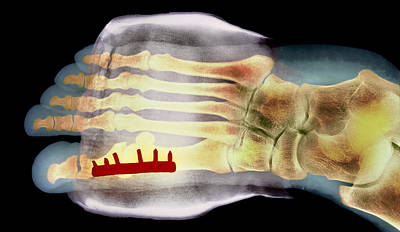 Big Toe After Bunion Surgery, X-ray Art Print by