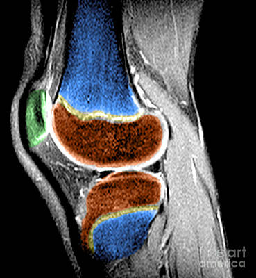 Childs Knee Art Print by Medical Body Scans