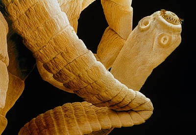 Coloured Sem Of A Tapeworm, Taenia Sp. Art Print by Power And Syred